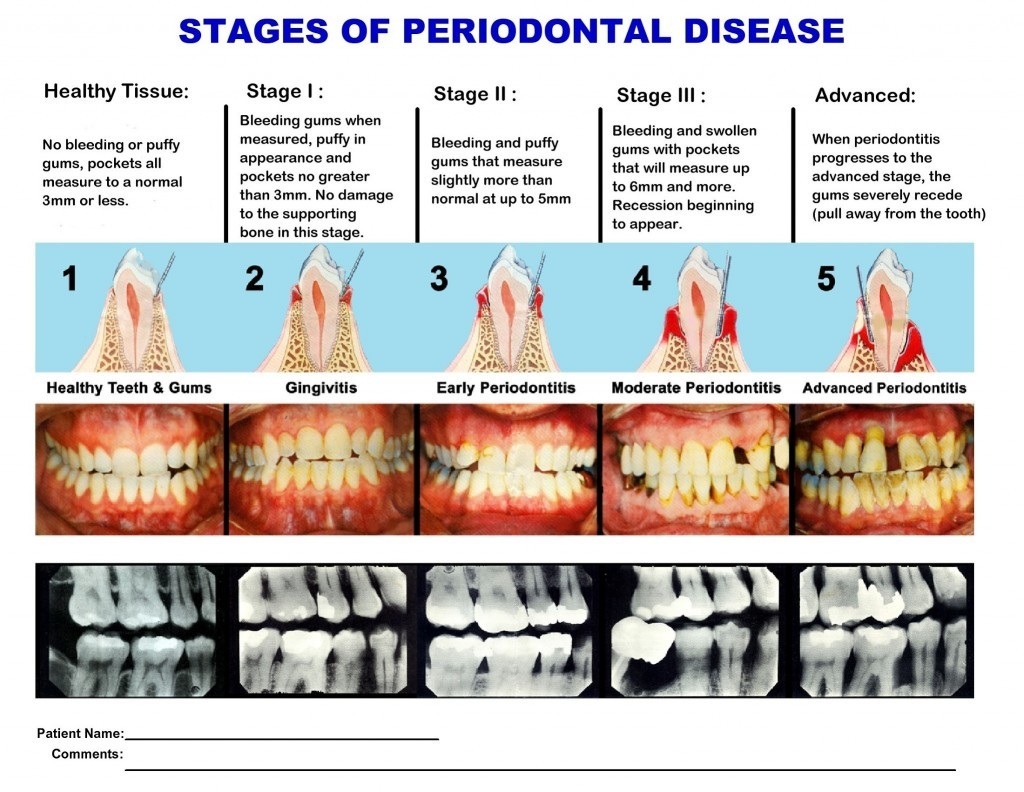 Periodontal Disease Dr Daniel R Pestana Diamond Certified