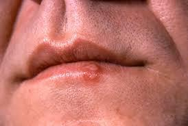 Cold Sores, Canker Sores Laser Therapy