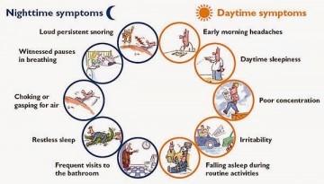 Obstructice Sleep Apnea