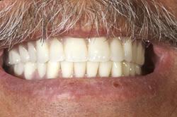 implant denture 3 (1)
