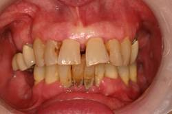 Before Hybrid denture