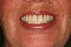 After Hybrid denture